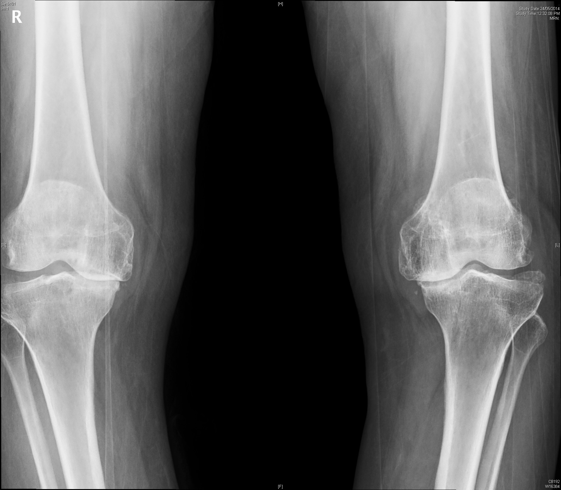 advanced OA Knee ap (2)