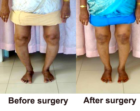 before and after- amina copy