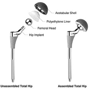 hip replacement implant uncemented 2