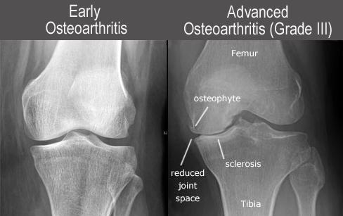 knee-OA XR grades