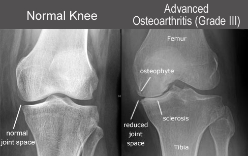 knee-OA XR -nml vs GrIII