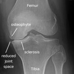 knee-osteoarthritis-stages XR