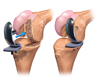 knee-replacement-surgery-cartoonknee-replacement-surgery-types-and-suggested-videos-knee-hip-if5hprfd