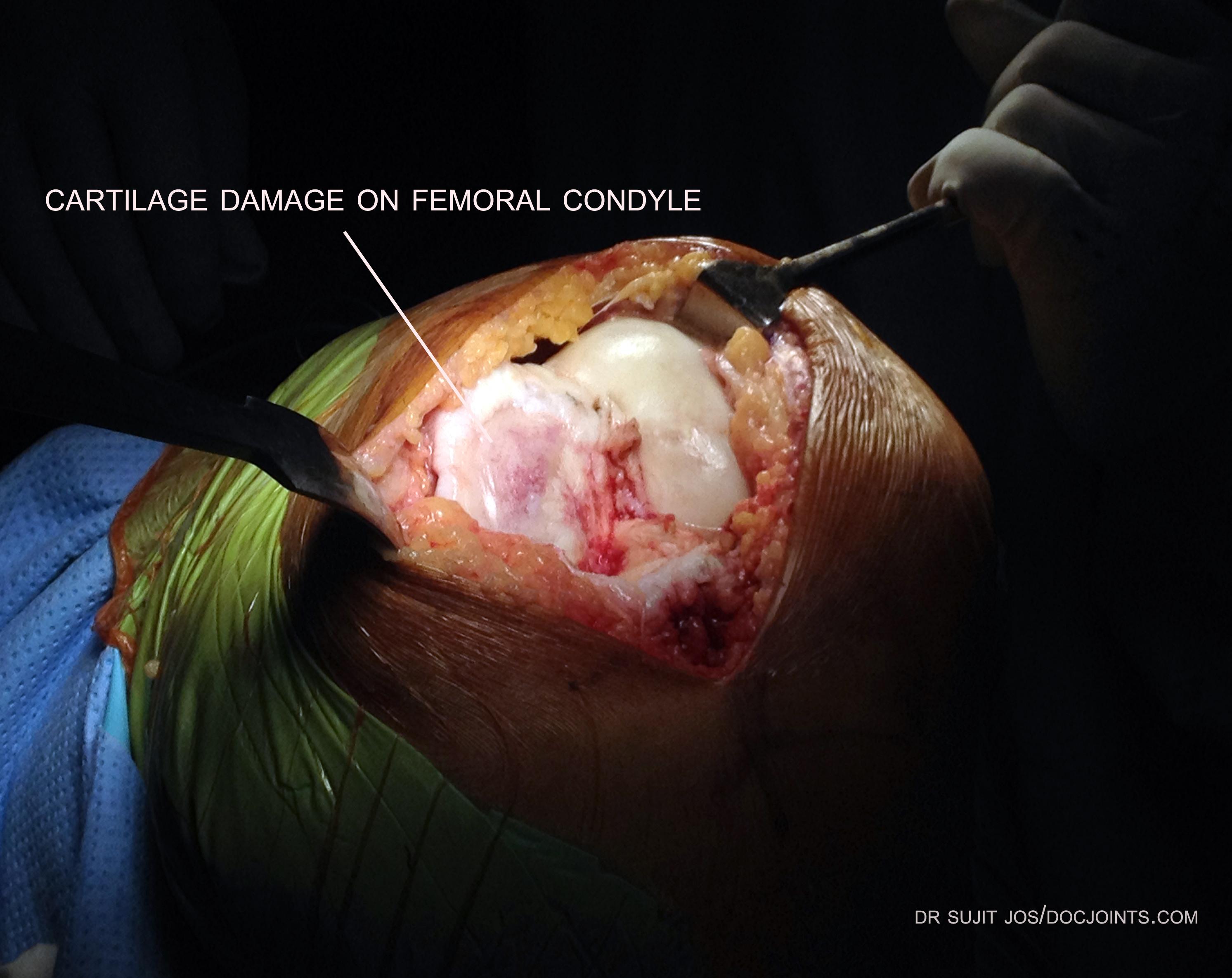 oa knee after opening intraop