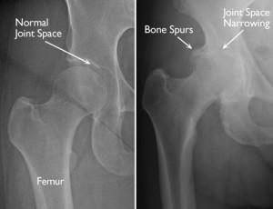 xray of arthritis hip