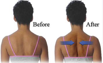 shoulder blade sqeeze  docjoints//dr sujit jos//total