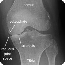 knee-osteoarthritis-joint-space-narrowing
