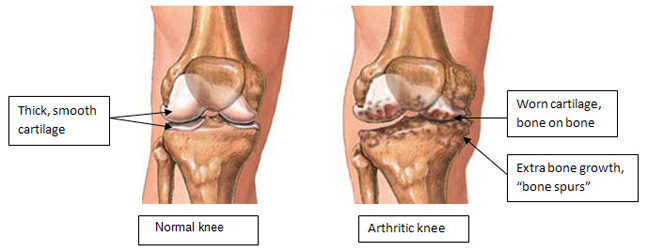 normal-knee-vs-an-arthritic-knee-r