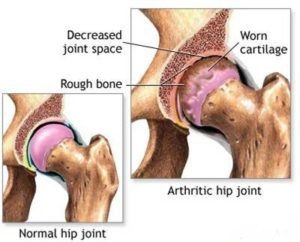 Normal and arthritic hip