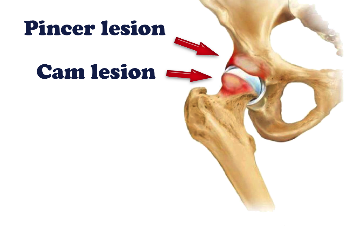 Hip arthroscopy dr Sujit jos pvs hospital