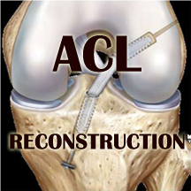 b -acl