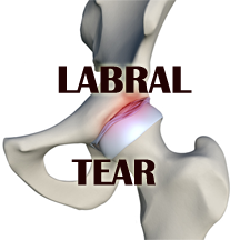 b-hip labral tear