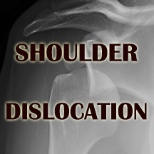 b-shoulder dislocation