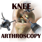 knee-scopy button