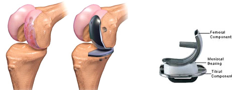 Knee-Replacement-3