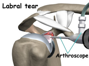 shoulder_arthroscopy_labral_tear