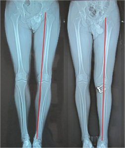 High tibial osteotomy (HTO)