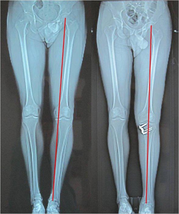 High tibial osteotomy (HTO)