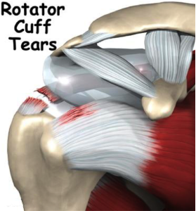 Complete Supraspinatus (Rotator Cuff) tendon tear