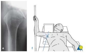 Shoulder Xray Positioning Docjoints Dr Sujit Jos Total