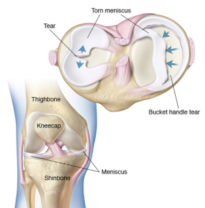 Meniscus tear docjointsdr sujit jostotal joint replacements bucket handle tear in meniscus ccuart Images