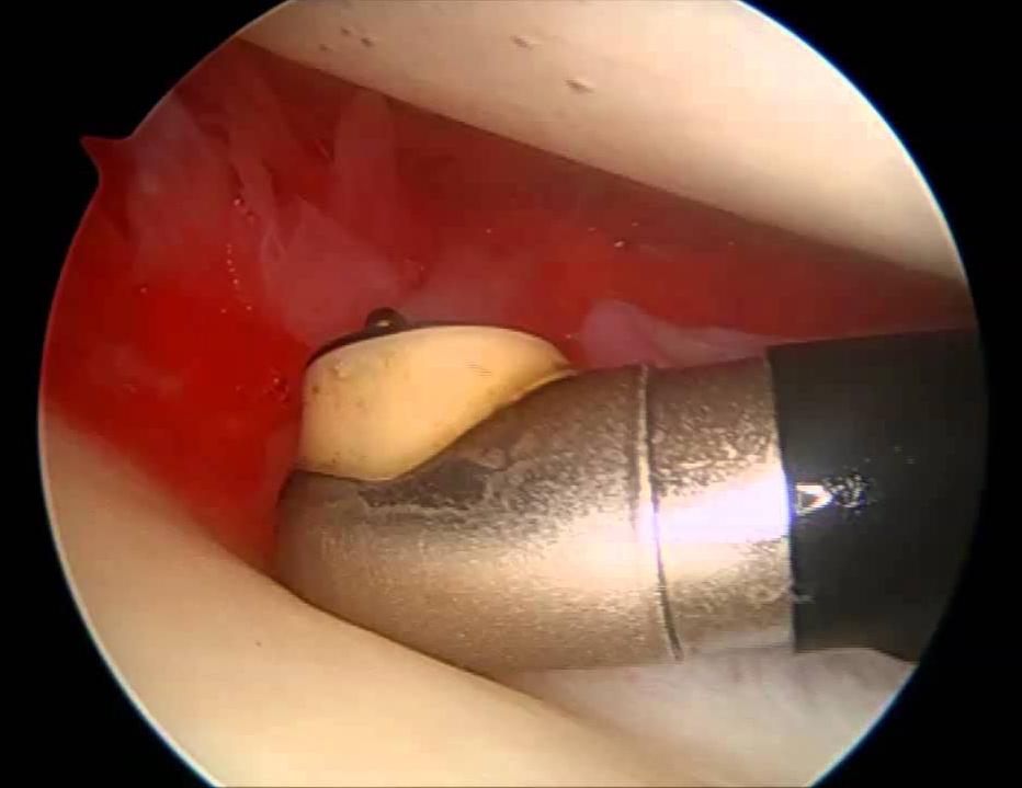 adhesive capsulitis release