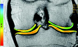 cartigram  docjoints//dr sujit jos//total joint