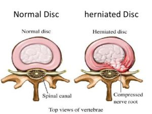intervertebral disc prolapse