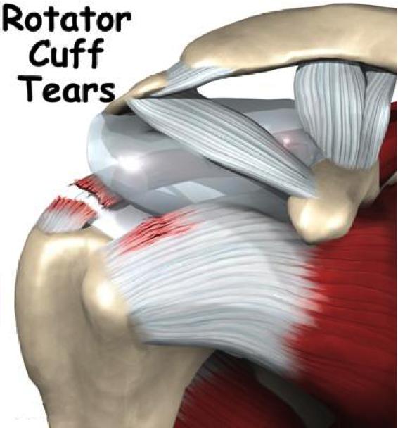 rotator cuff supraspinatus tear kerala
