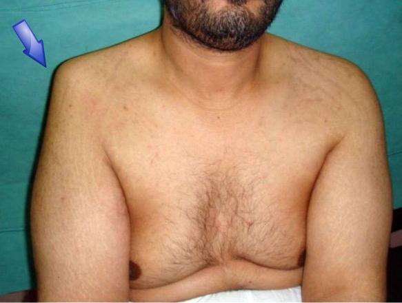 shoulder dislocation surgery