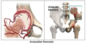 Avacular necrosis of hip joint